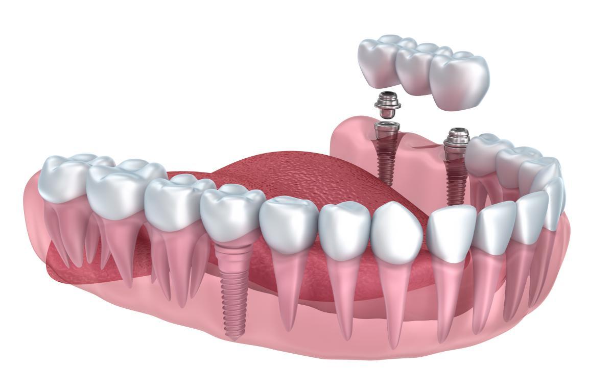 Implant dentaire : Une dent appréciée ?
